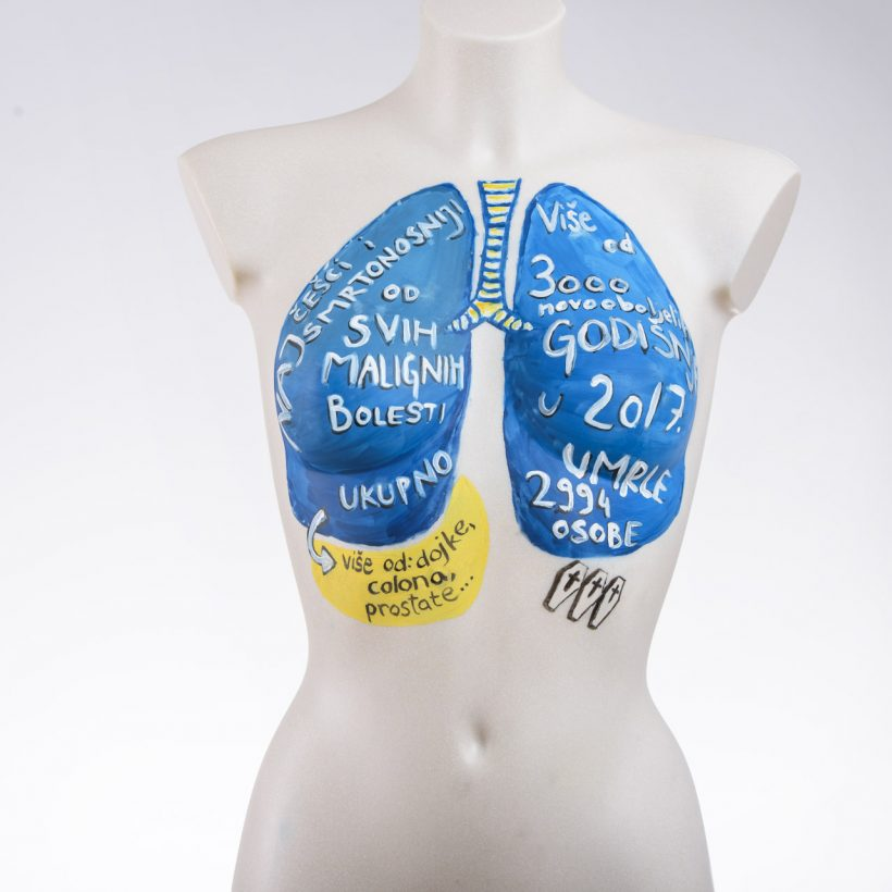 Govorimo o raku pluća (38 of 74)