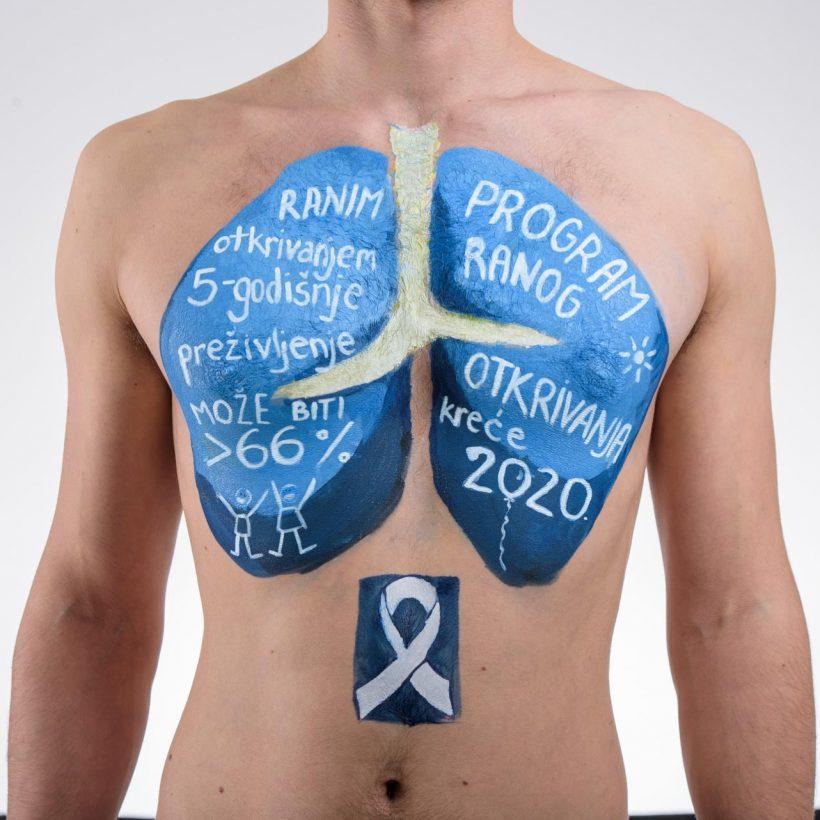 Govorimo o raku pluća (39 of 74)